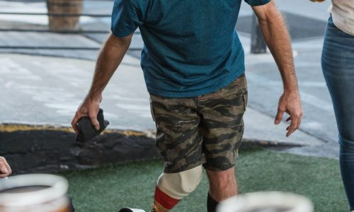 man with prosthetic leg about to throw black pack